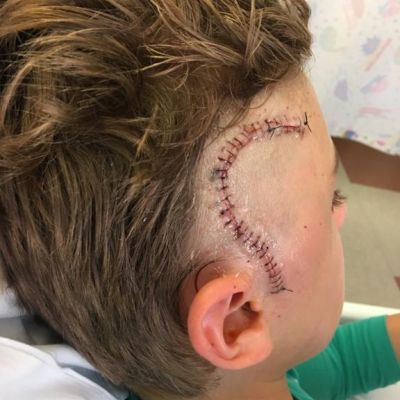 Jacks head scar from surgery